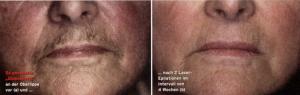 Damenbart Laser Epilation Quelle: Ärztemagazin 25/2002