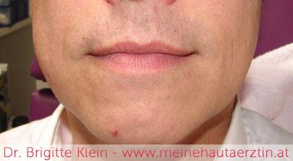 Männerbart nach der dauerhaften Haarentfernung mit Laser bei Dr. Klein