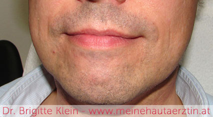 Männerbart vor der dauerhaften Haarentfernung mit Laser bei Dr. Klein