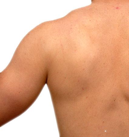 Rücken 1 Woche nach Haarentfernung mit Laser