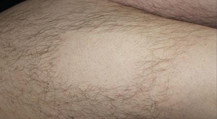 Laser-Haarentfernung vier Wochen nach Behandlung