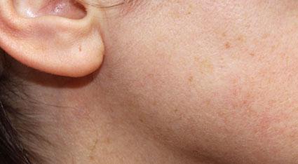 Wange einer Frau nach der Laser-Haarentfernung bei Dr. Klein