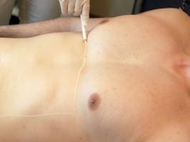 Haarentfernung Brust Erfahrungsbericht